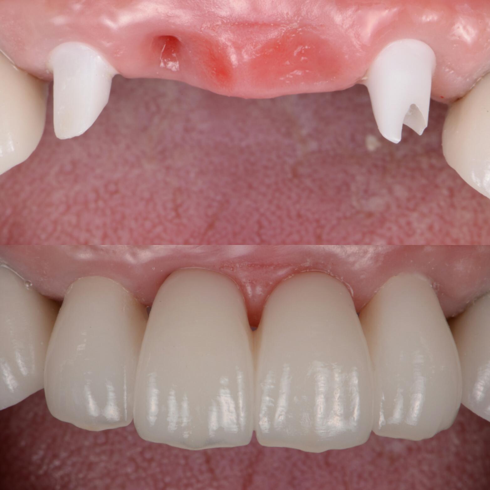 前歯のインプラントをした症例紹介