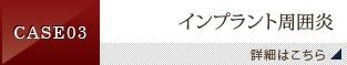 CASE 03 インプラント周囲炎
